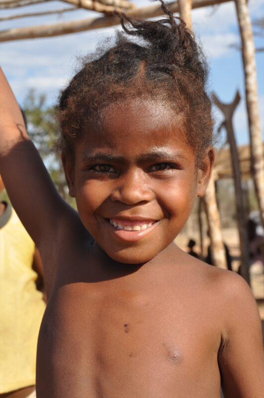 Fantastisk pige ved baobaballeen i Madagaskar